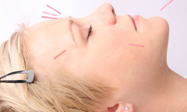 Acupuncture along with anti-depressants helps fight severe depression