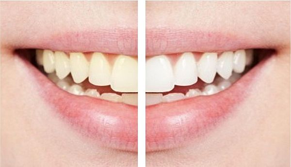 Oral hygiene: 5 easy tips for those 'snow white' teeth!