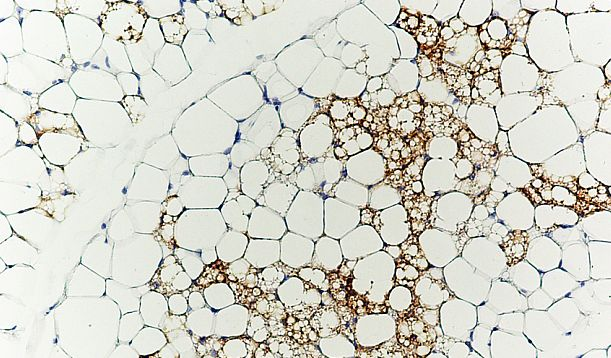 Brown fat cells may harbour diabetes, obesity cure