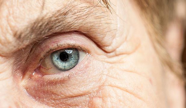 Soon, sight-saving treatment to protect eyes from cataract