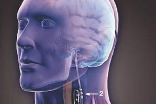New neck nerve stimulation device could cut heart failure symptoms