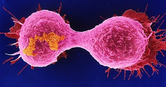 Low oxygen bad for breast cancer patients