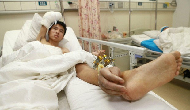 Chinese docs save man's severed hand by sewing it to his ankle
