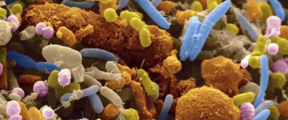 Gut bacteria linked to colorectal cancer