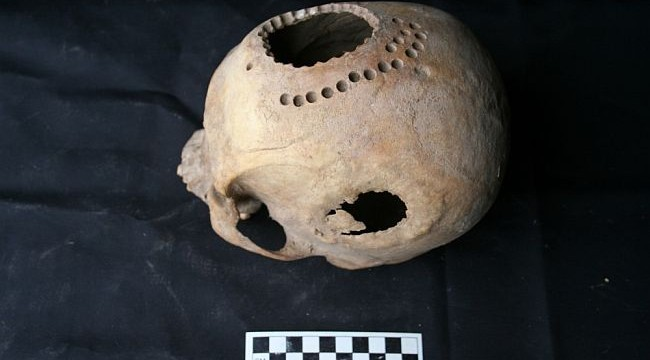 Healers in Peru practiced drilling skull surgery more than 1,000 years back