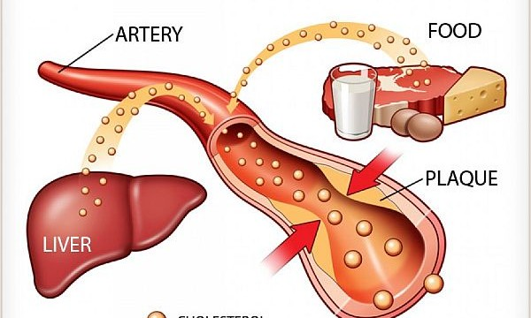 How `good cholesterol` can help stop inflammation