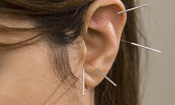 Ear acupuncture could help win battle of bulge