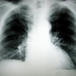 `No clear link` between lung cancer and passive smoke