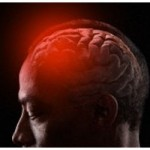 Low levels of vitamin D linked to brain damage